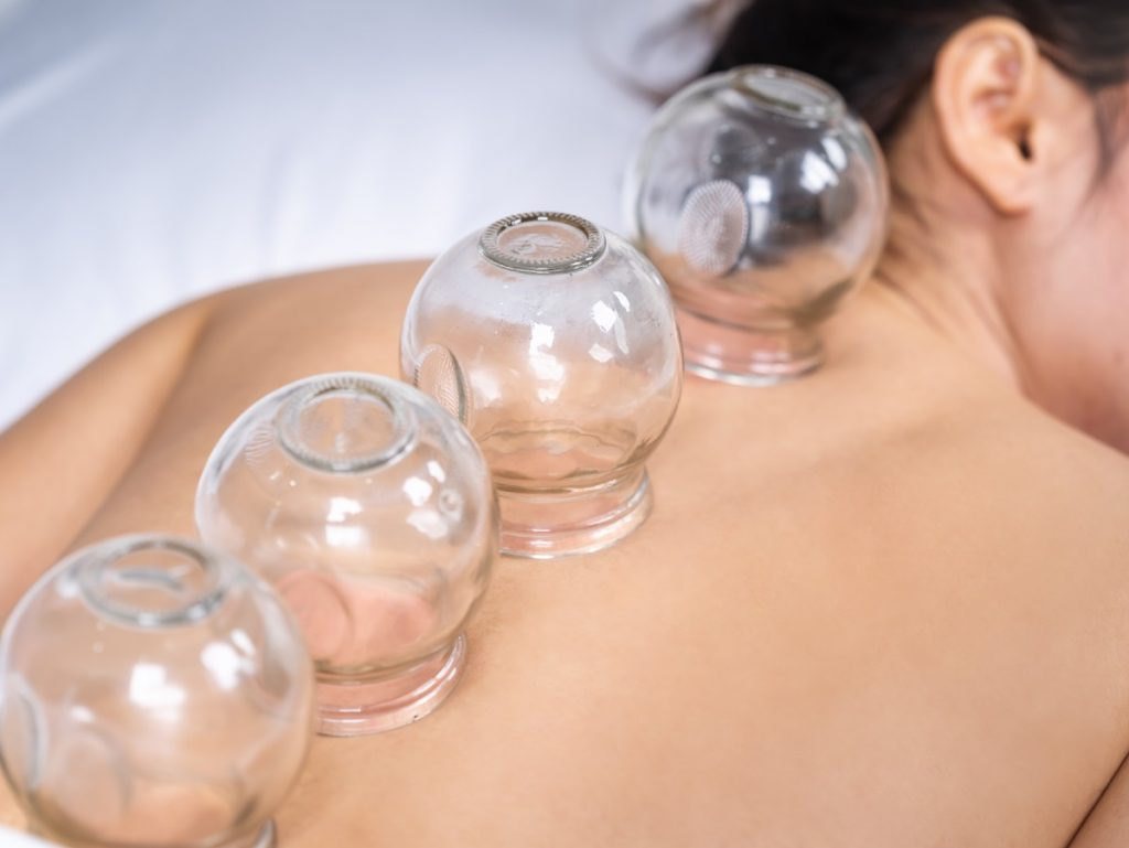 cupping therapy Melbourne